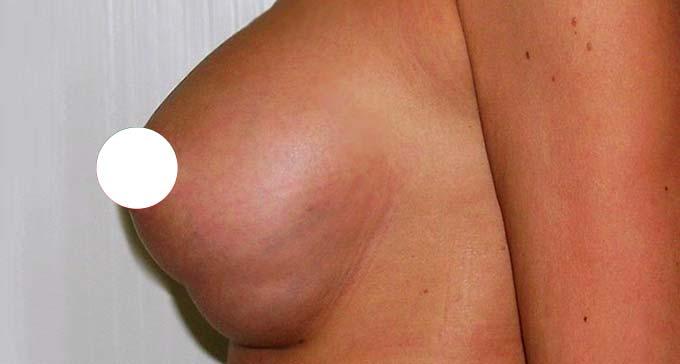 Складка под грудью после пластики
