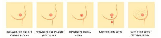Симптомы маммологических заболеваний