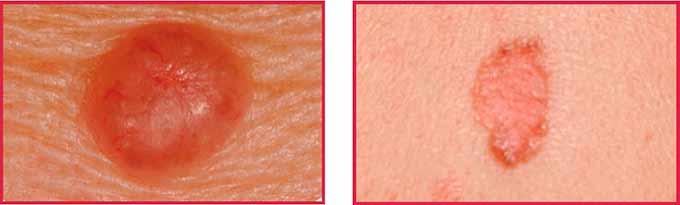 Патологическое образование на коже