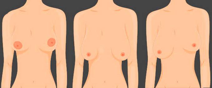 Асимметричное расположение груди