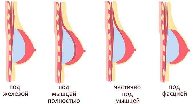Расположение импланта при маммопластике