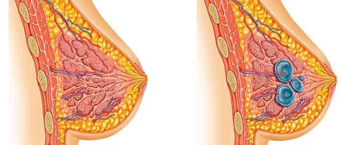 Опухолевое образование внутри молочной железы