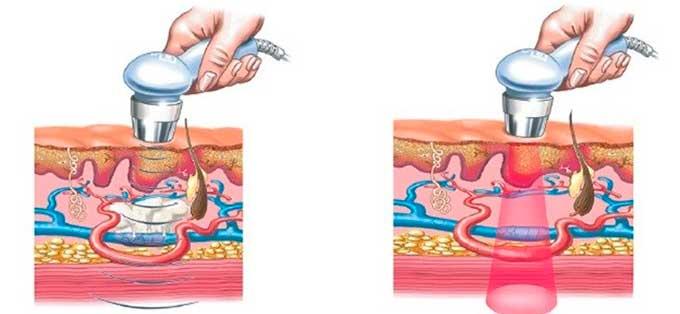 Воздействие фонофореза на ткани
