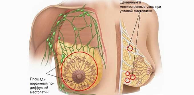 Поражение тканей груди при мастопатии