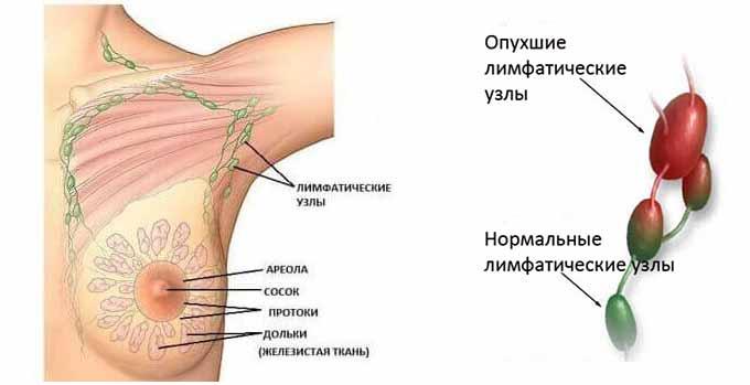 аксиллярная лимфаденопатия