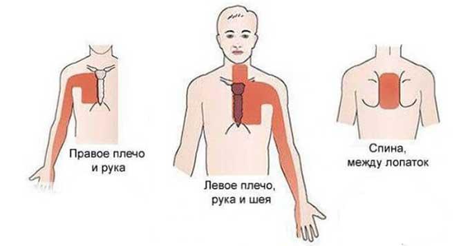 Локализация боли при патологии молочной железы