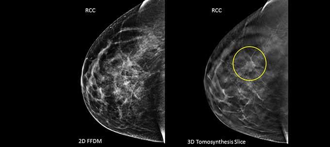 Лимфоузлы на маммографии