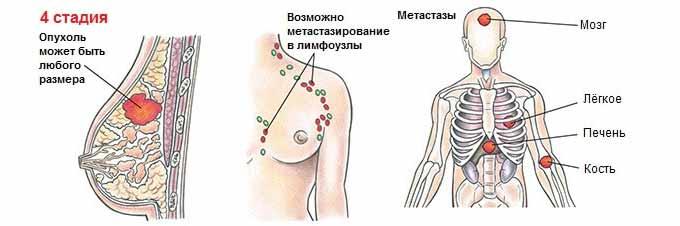 Метастазы и заражение лимфоузлов раковыми клетками