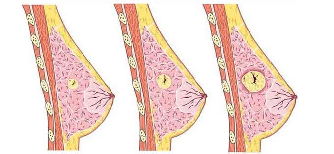 Рост опухоли при мастопатии