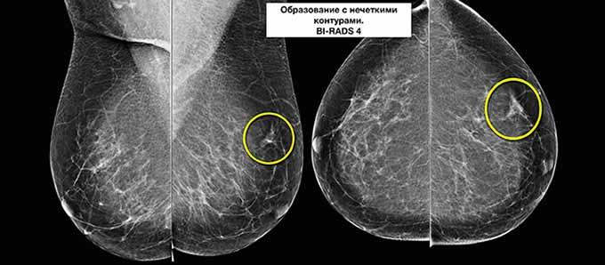 Лимфоузлы молочной железы на УЗ