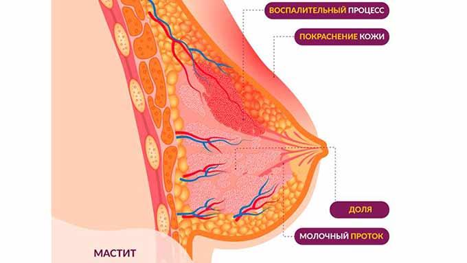 Схема мастита груди