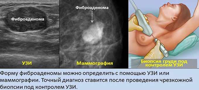 Диагностические методы при фиброаденоме