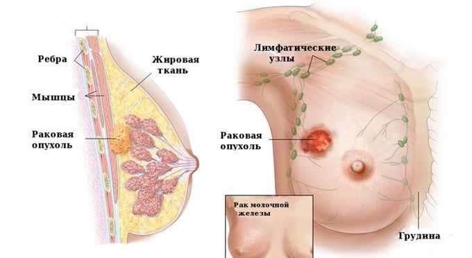 Раковая опухоль груди