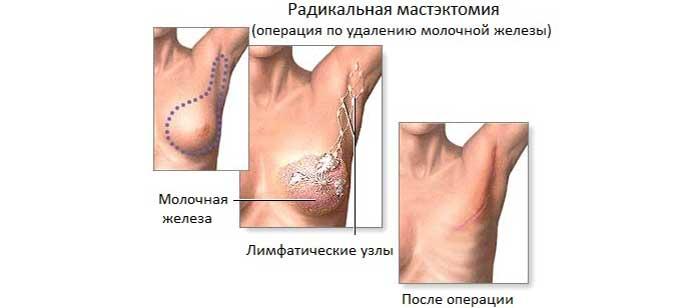 Полное иссечение груди при РМЖ