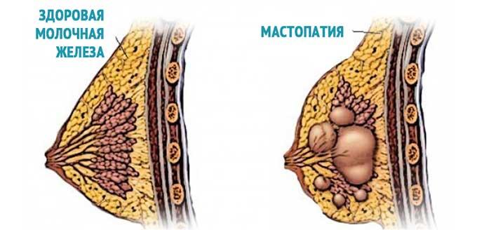 Как выглядит мастопатия