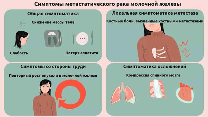 Симптомы метастатического рака груди