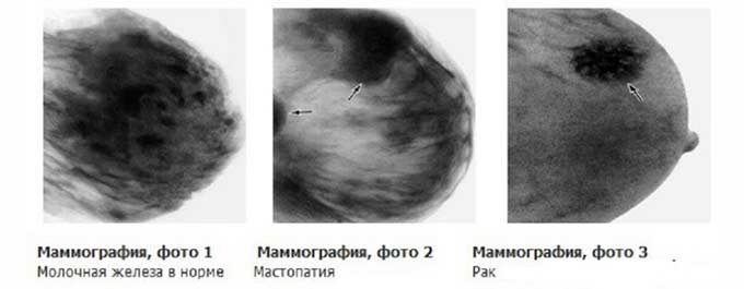 Рак груди на маммографии