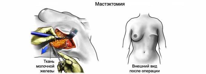 Мастэктомия у женщин