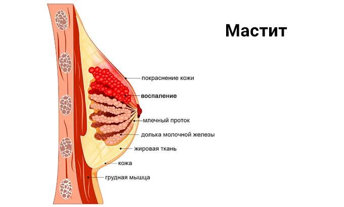 Мастит (грудница)
