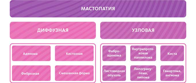 Разновидности мастопатии