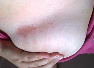 Красное пятно на коже груди