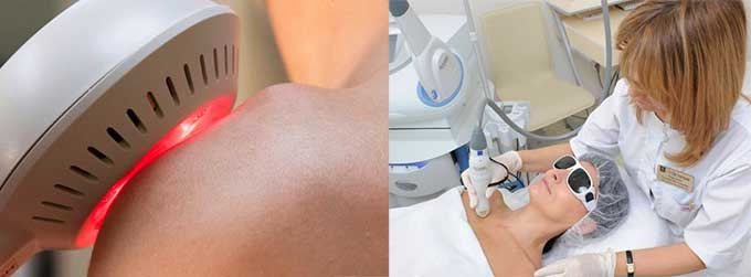 Лазеротерапия при мастопатии