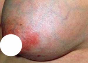 Опухлость груди